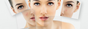 Acne scars removal treatment in hyderabad
